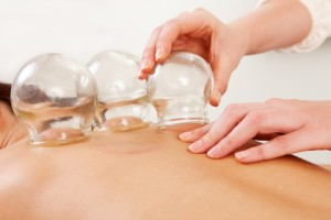 Cupping 300x200 - Cupping