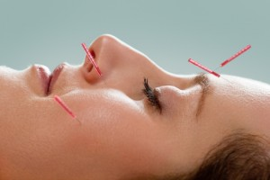 cosmetic acupuncture 300x200 - cosmetic acupuncture