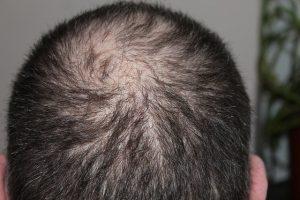 hair 248049 640 300x200 - hair-248049_640
